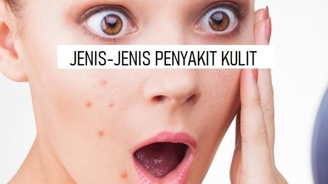 JENIS-JENIS PENYAKIT KULIT
